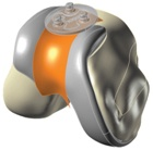 iDuo® G2 Bicompartmental Knee Resurfacing Device